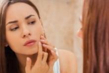 Você pode prevenir a acne com uma rotina de cuidados correta.